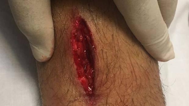 Ferita shock alla caviglia per Perotti: FOTO non adatta per deboli di stomaco