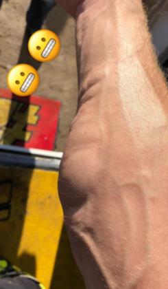MotoGp – Brutto colpo per Iannone in allenamento: la FOTO SHOCK pubblicata dal pilota