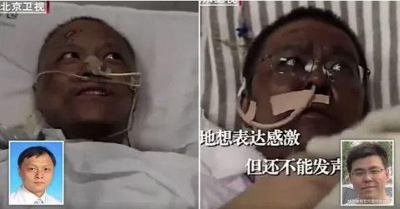 Medici cinesi contagiati dal virus si risvegliano con la pelle scura